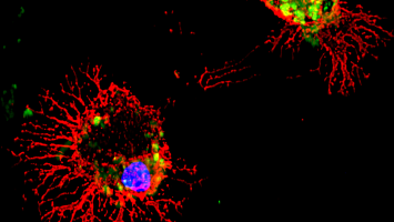 Photo: Microglia cells stained red and green