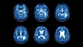 MS diagnosis developed - brain