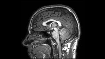 MRI scans could help predict MS progression - brain