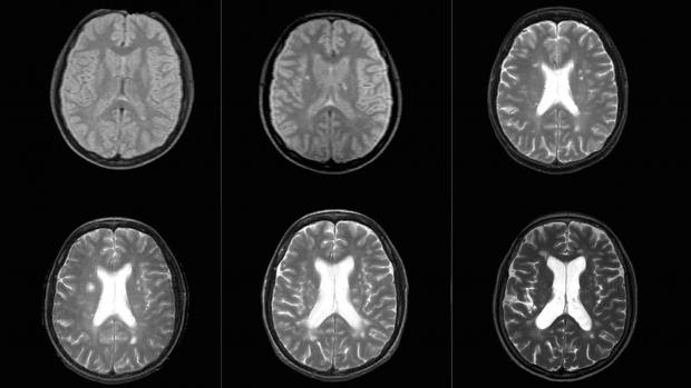 an image of 6 brain scans in black and white