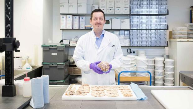 A tissue bank researcher stands in a lab in front of a tray of tissue samples