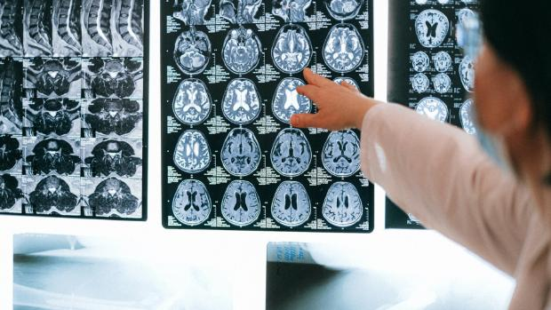 A doctor points to images of a brain and spine that are shown on MRI scans