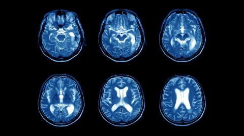 MRI scans of a brain